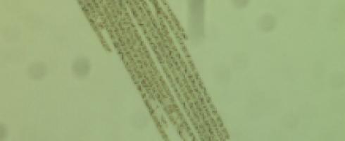 l'algue AFA ou algue Klamath pour votre immunité