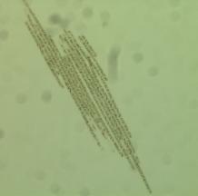 algue-du-lac-klamath.png_720_1000_2