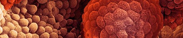Le cancer, une maladie de l'évolution ?