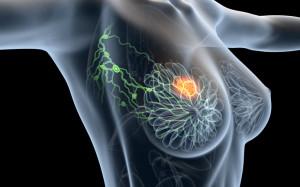 cancer-sein-radiotherapie