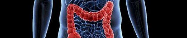 CANCER du CÔLON : La protéine unique qui apaise le microbiome