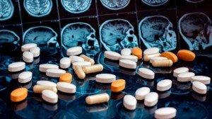 Pharmaceutical medicine pills on magnetic brain resonance scan mri background. Pharmacy theme, health care, drug prescription for tumor, alzheimer, mental illness treatment medication
